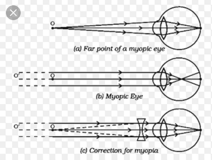 What Is Myopia State Two Causes Of Myopia Help Of Labelled Diagram