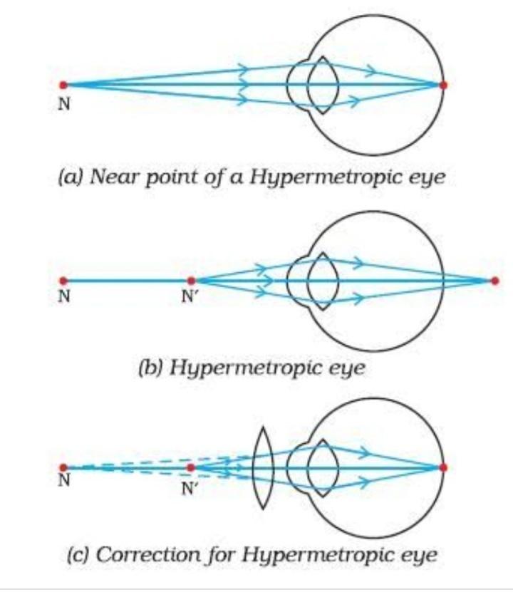 Myopia defect diagram, A színes látás rendellenességei - Betegség -