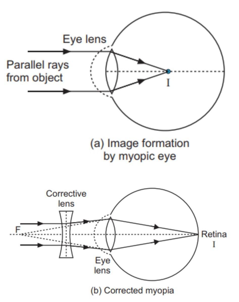 kövek, amelyek helyreállítják a látást