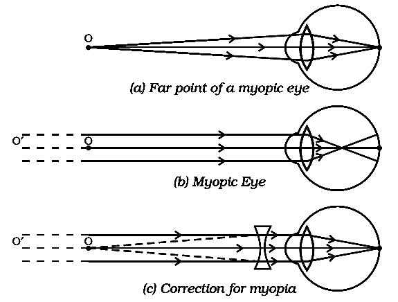 Draw a ray diagram of myopic eye and its rectification brainly download jpg ccuart Gallery