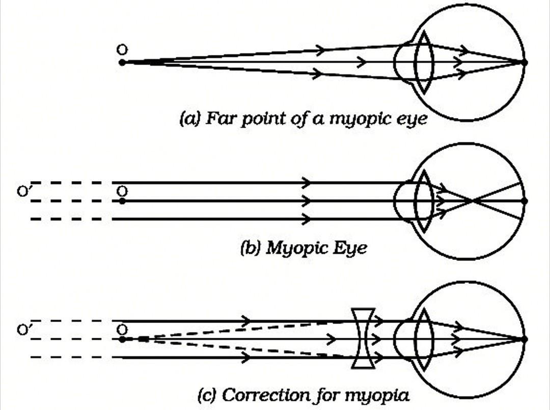 myopia ray diagram szemfolt a látás helyreállítása