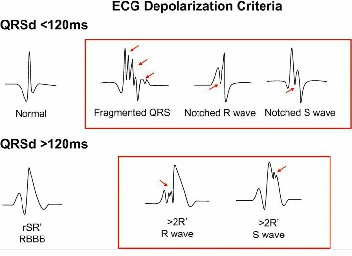 Draw a standard ECG and explain the different segments in it
