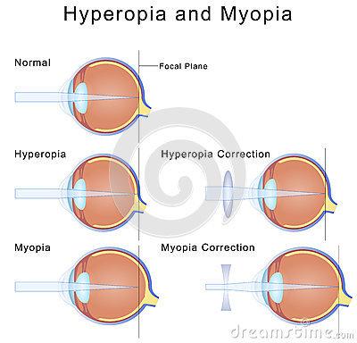 Mi az emberi myopia vagy hyperopia hibája?